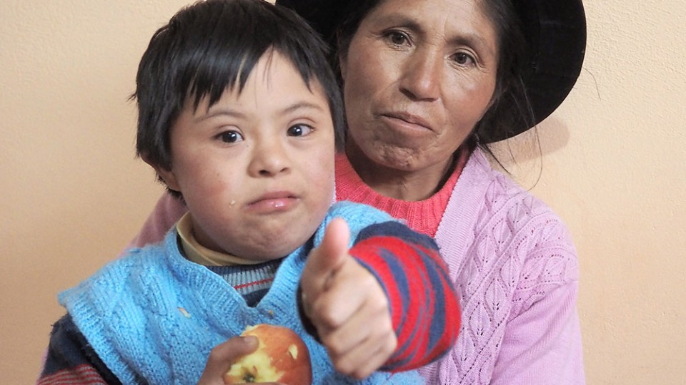 chilod with down syndrome in Peru
