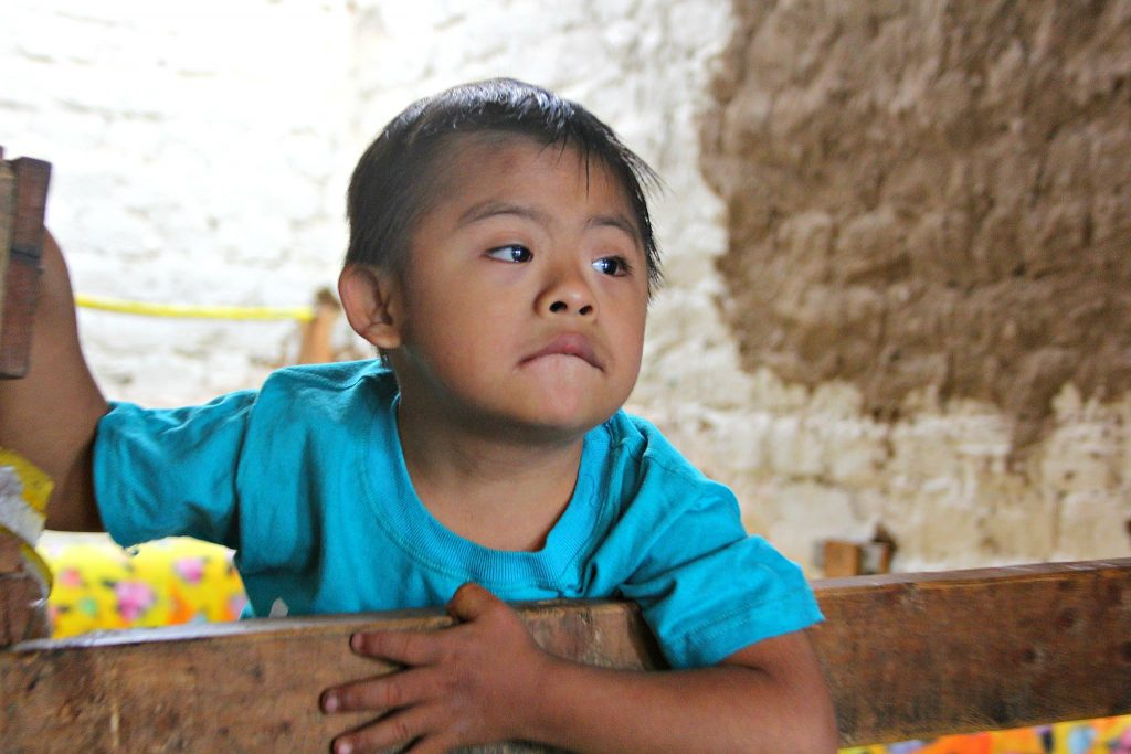 After 18 months of therapy and care, five-year-old Juan Elias is starting to communicate with his family.