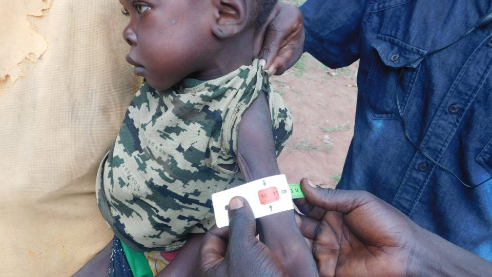 Arm circumfrance test of a child in the IDP camp during a nutrition and health assesment in south sudan.