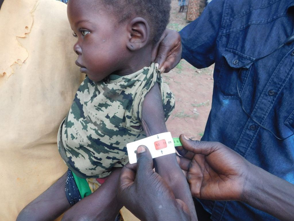 Baby south sudan. Internally displaced child during a health and nutrition assessment in Mvolo, South Sudan