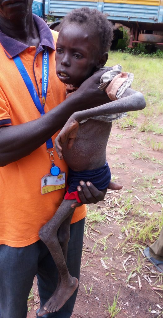 Sami in the arms of a health worker. He was too weak to walk.