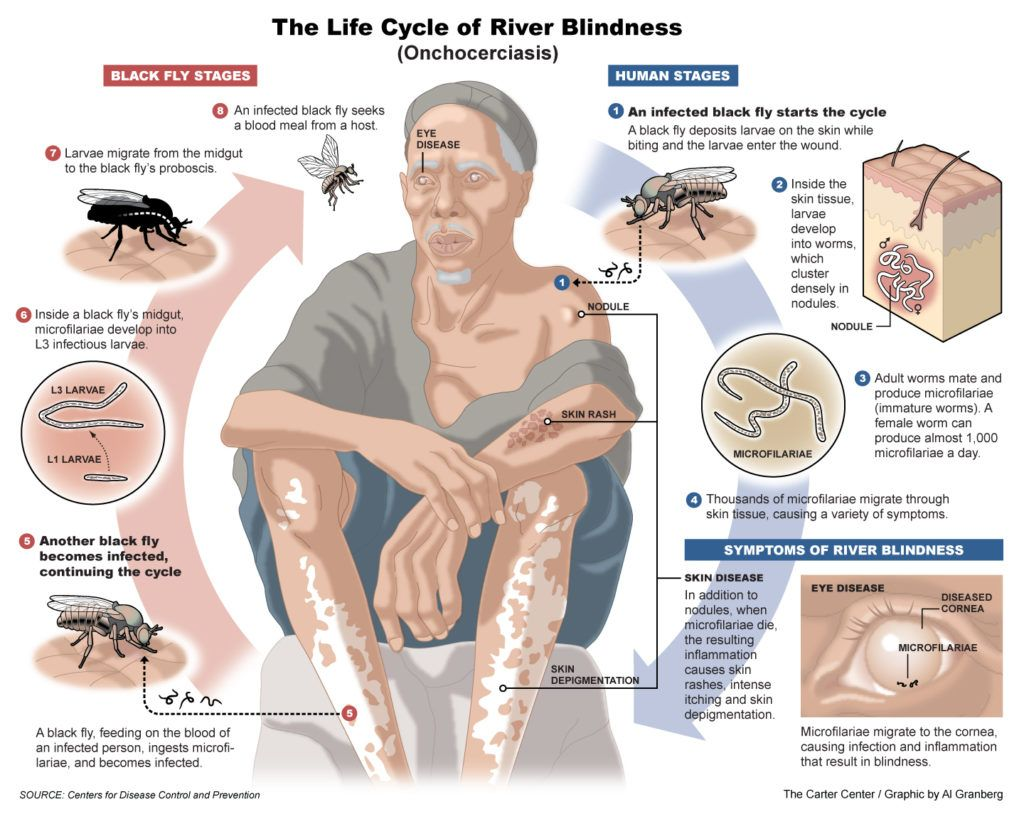 Life cycle of river blindness a neglected tropical disease.