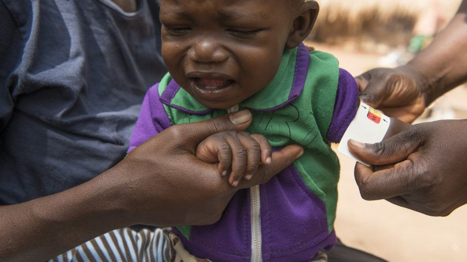 South Sudan_child at Rimenze IDP camp examined for malnutrtion_photog Charles Lomodong