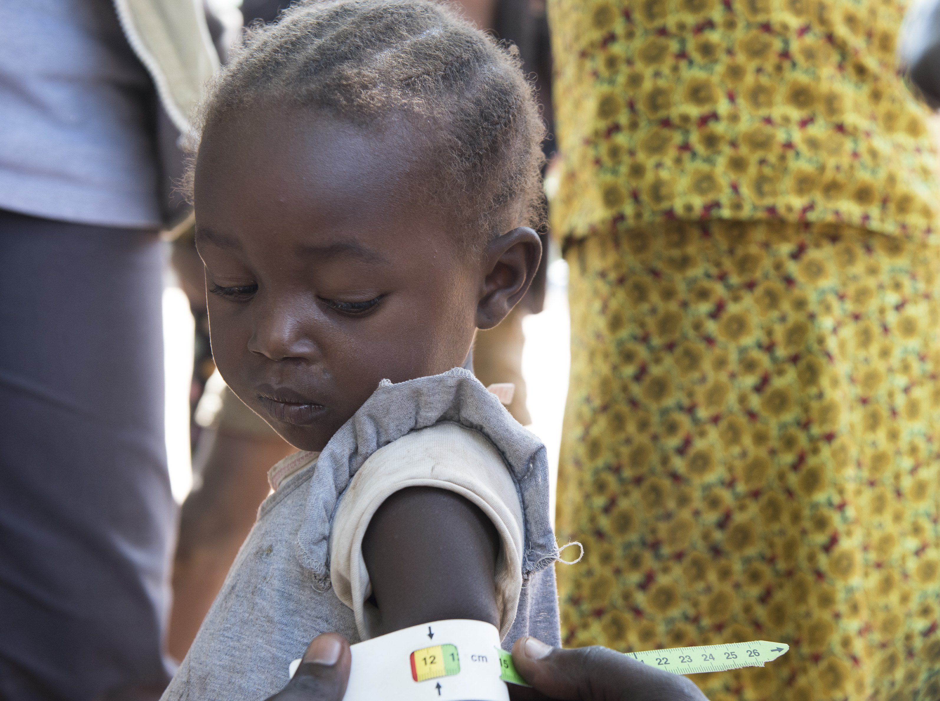 Small child being treated for malnutrition in South Sudan