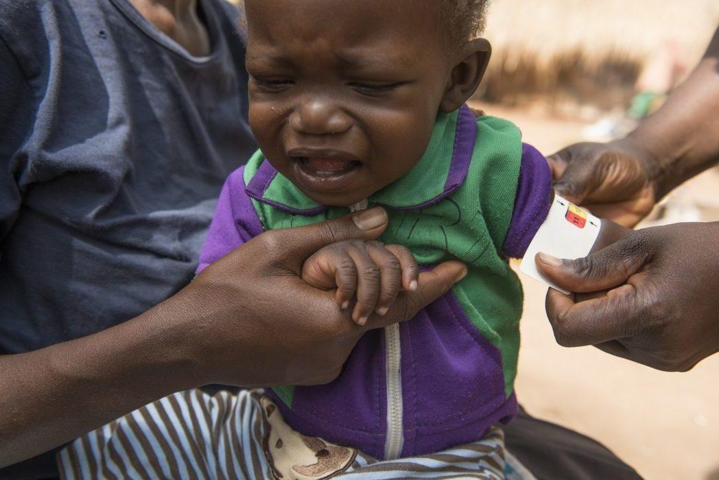 measuring for malnutrition in children