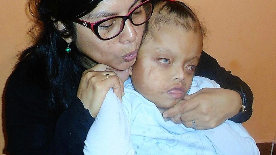 Milusaca faces many challenges. But, she is a bright little girl - CMMB Peru Angel