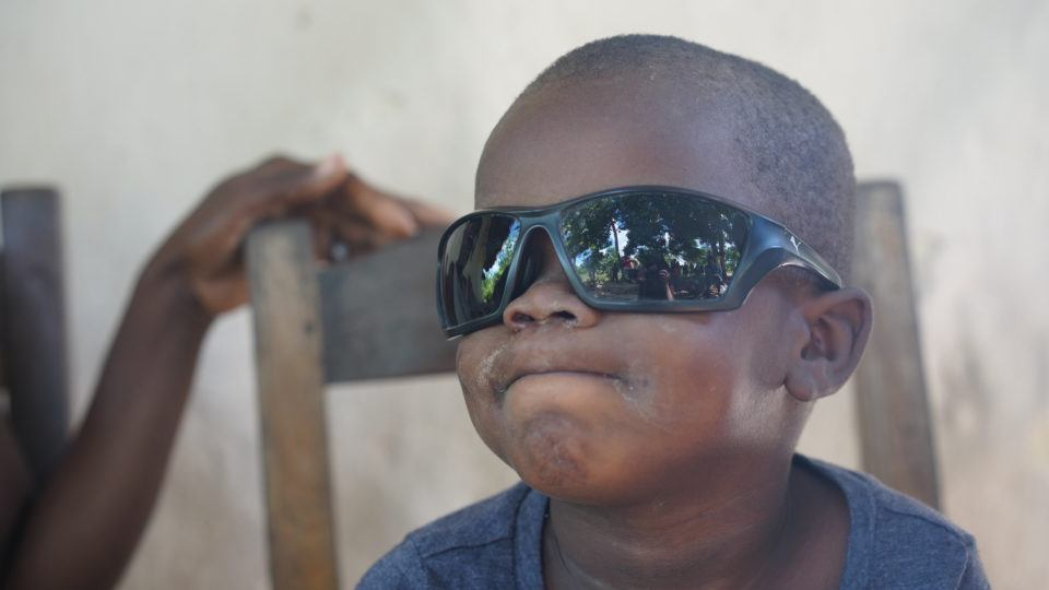 Feski playing with the community health worker's sunglasses