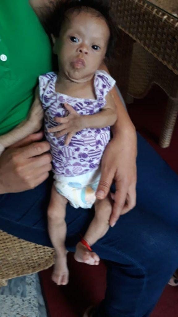 An image of baby Ema. She has down syndrome and came to Columbia malnourished