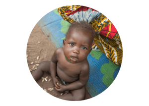 A young baby boy from South Sudan stares up at the camera. He is malnourished and sick.