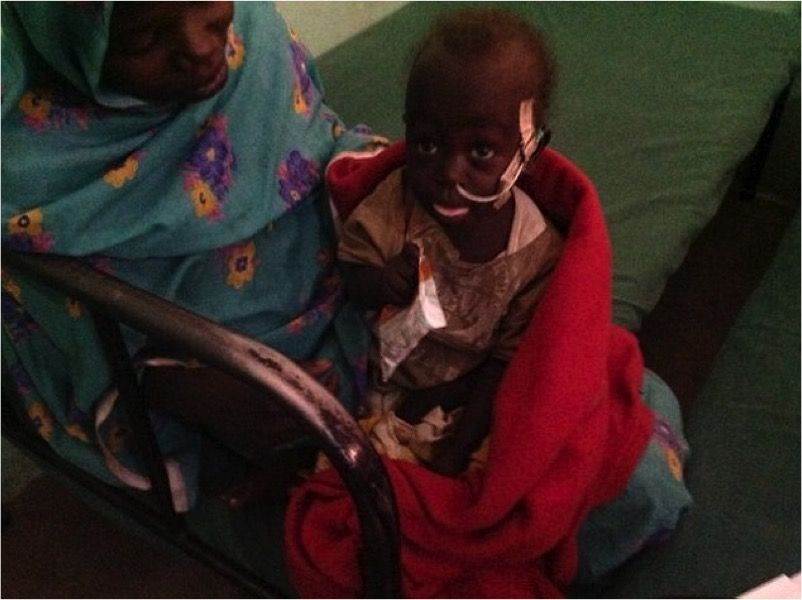 A child in Sudan has Marasmus. Her hair is a reddish color