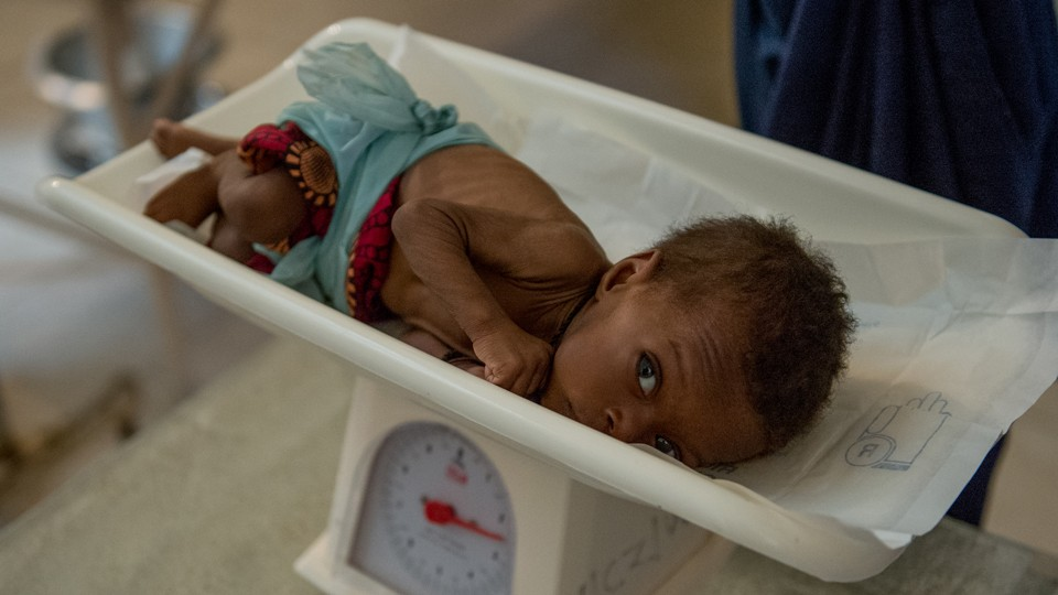 A malnourished child being weighed in a scale at Mwandi Mission Hospital in Zambia in June 2018.