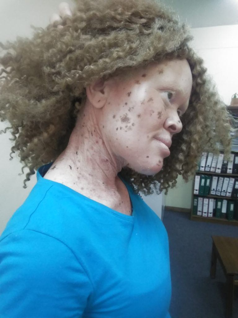 Tsitsi has Albinism and lives in Zimbabwe