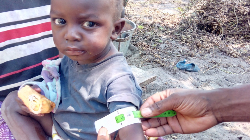 A child being measured for malnutrition in rural Mwandi in Zambia in 2021.