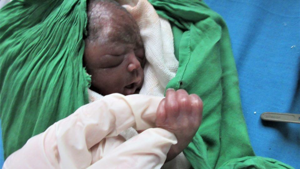 A premature baby girl delivered by Aurora Fellow Sarah Rubino